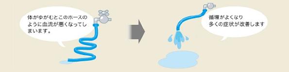 歪みを整えて循環を良くしたら多くの事故後の腰痛は回復方向に進みます