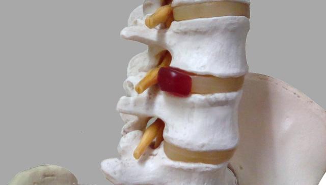 椎間板ヘルニアでの悩みがたった1回の施術で効果テキメン!